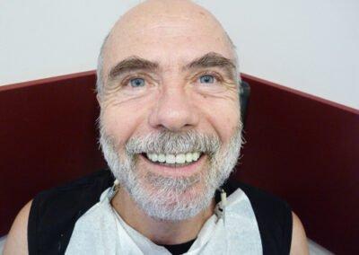 след лечение